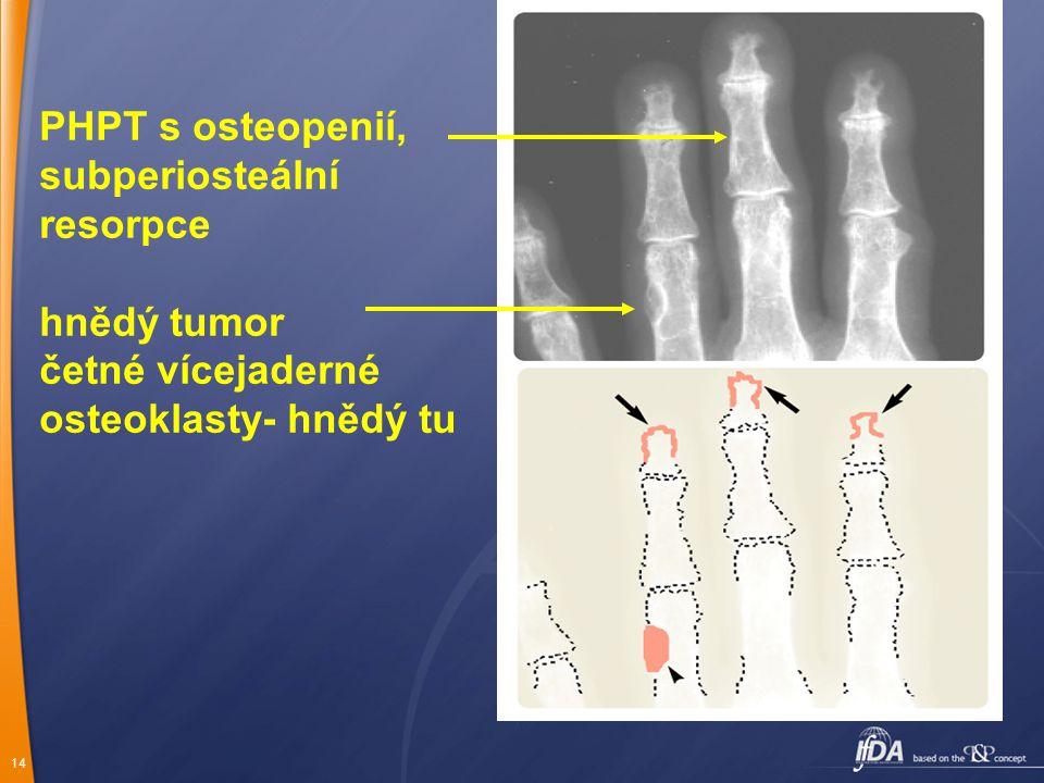 14 PHPT s osteopenií, subperiosteální resorpce hnědý tumor četné vícejaderné osteoklasty- hnědý tu