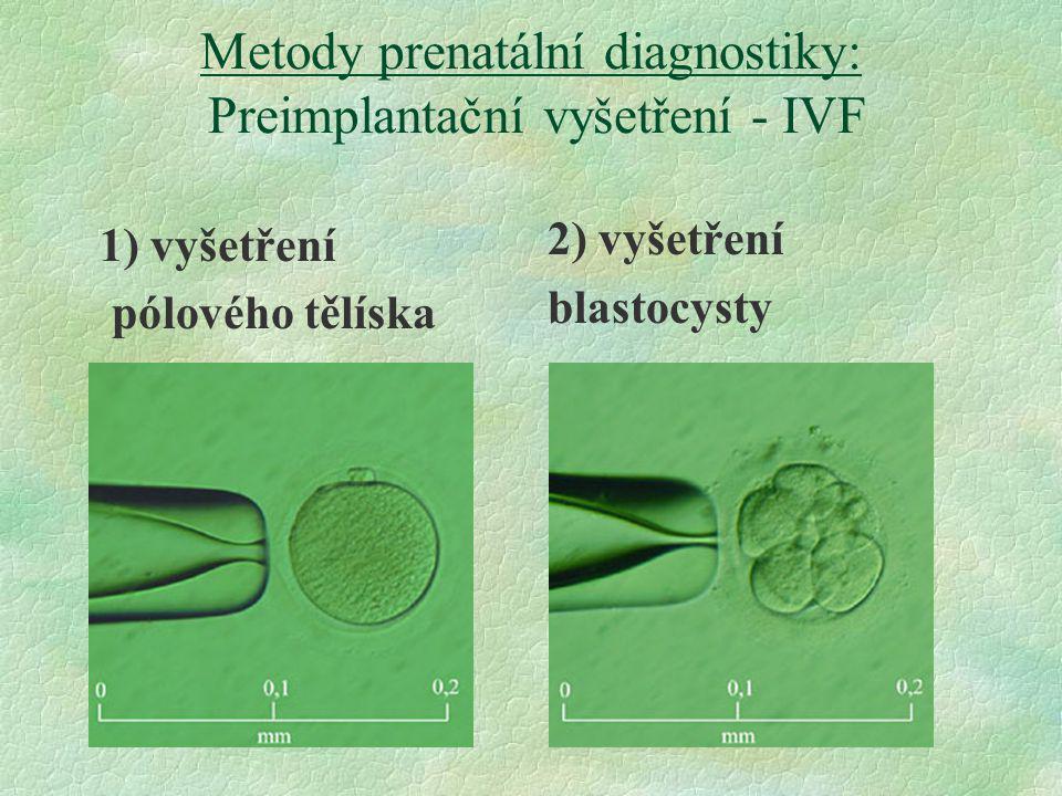 Metody prenatální diagnostiky: Preimplantační vyšetření - IVF 1) vyšetření pólového tělíska 2) vyšetření blastocysty