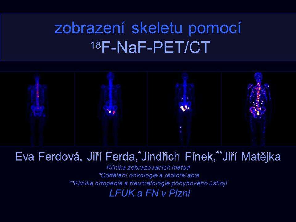 18 zobrazení skeletu pomocí 18 F-NaF-PET/CT Eva Ferdová, Jiří Ferda, * Jindřich Fínek, ** Jiří Matějka Klinika zobrazovacích metod *Oddělení onkologie