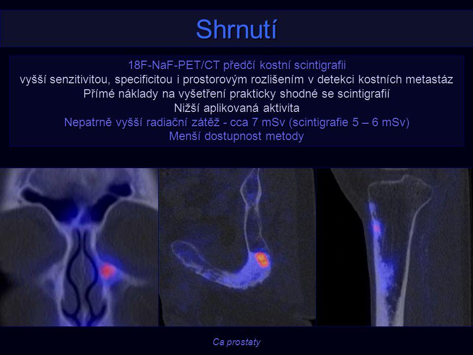 Shrnutí 18F-NaF-PET/CT předčí kostní scintigrafii vyšší senzitivitou, specificitou i prostorovým rozlišením v detekci kostních metastáz Přímé náklady