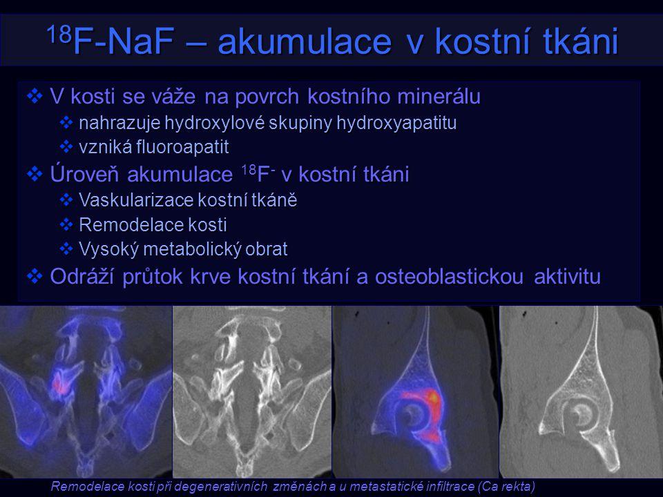 18 F-NaF – akumulace v kostní tkáni  V kosti se váže na povrch kostního minerálu  nahrazuje hydroxylové skupiny hydroxyapatitu  vzniká fluoroapatit
