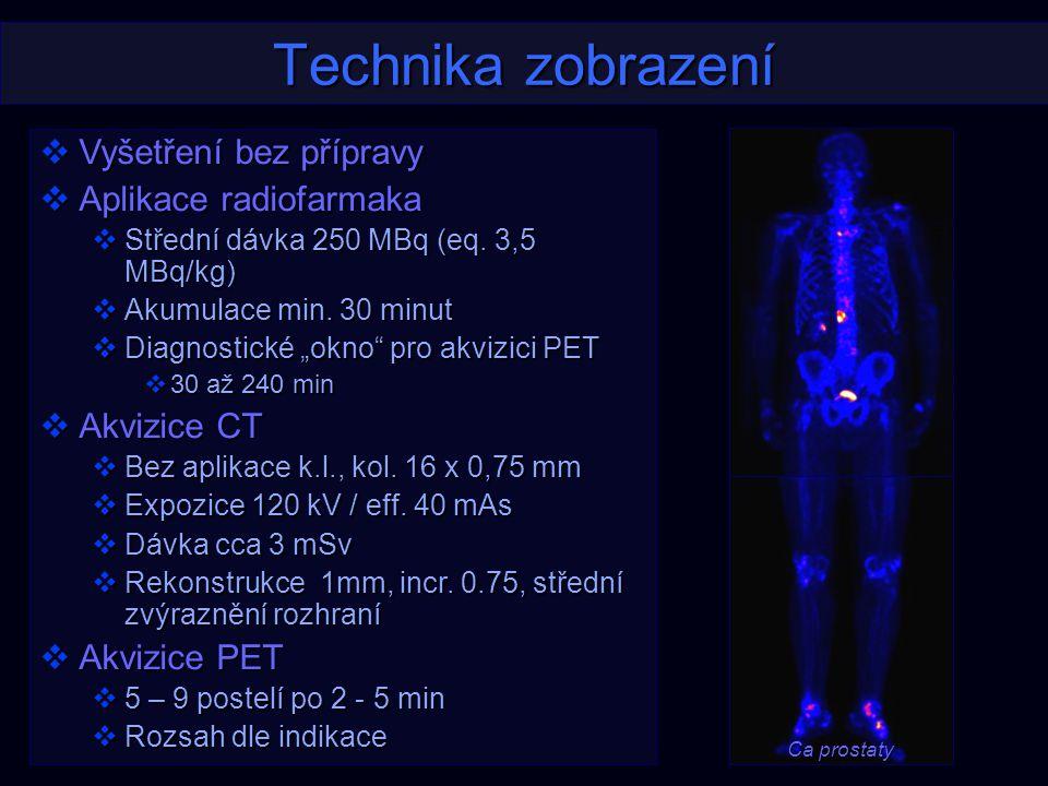 Technika zobrazení  Vyšetření bez přípravy  Aplikace radiofarmaka  Střední dávka 250 MBq (eq. 3,5 MBq/kg)  Akumulace min. 30 minut  Diagnostické