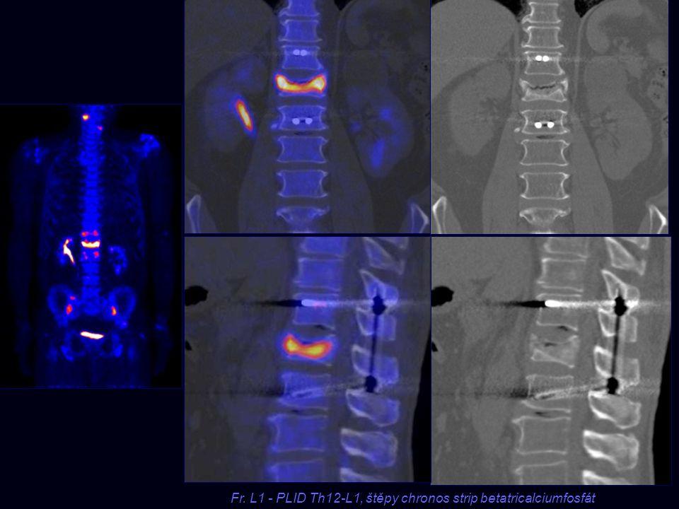 Fr. L1 - PLID Th12-L1, štěpy chronos strip betatricalciumfosfát Fr. L1 - PLID Th12-L1, štěpy chronos strip betatricalciumfosfát
