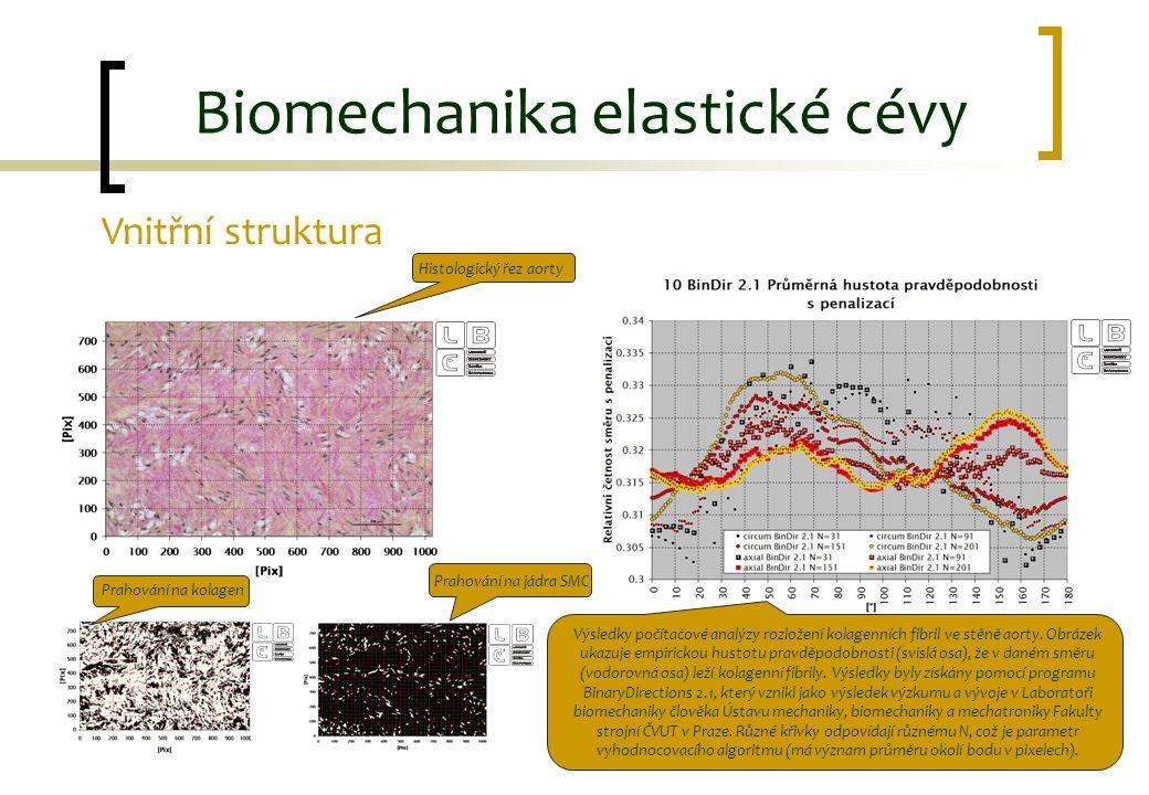 Biomechanika elastické cévy Vnitřní struktura Histologický řez aorty Prahování na jádra SMC Prahování na kolagen Výsledky počítačové analýzy rozložení
