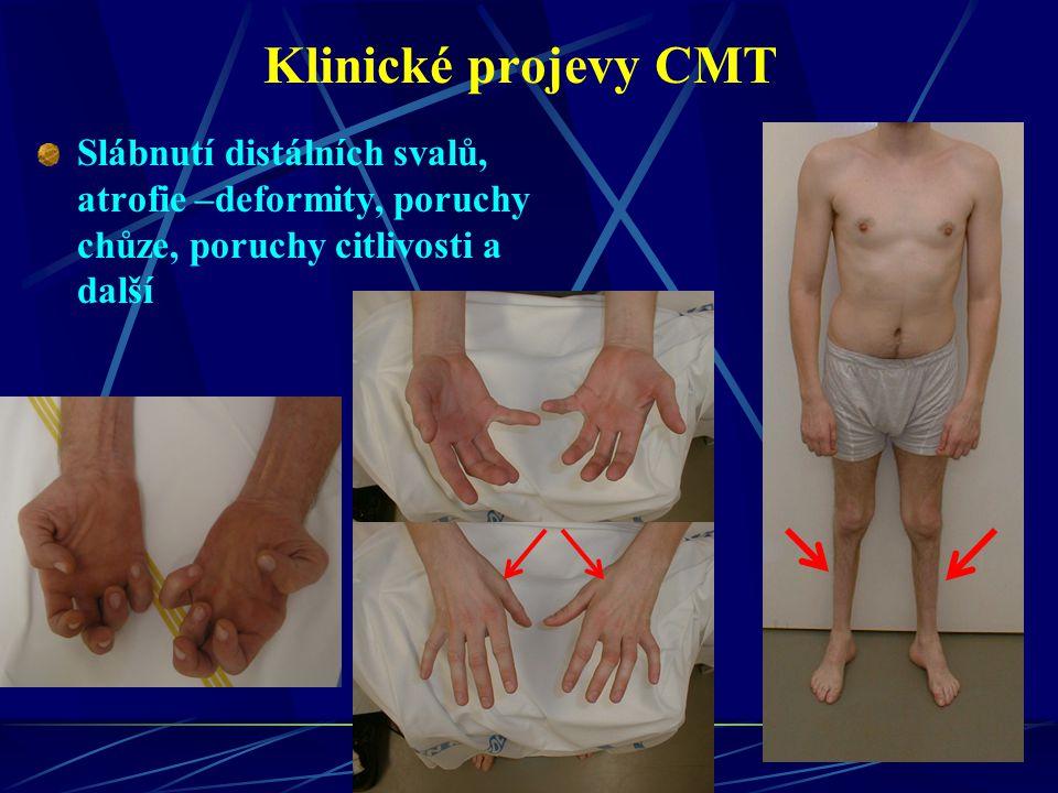 Klinické projevy CMT Slábnutí distálních svalů, atrofie –deformity, poruchy chůze, poruchy citlivosti a další