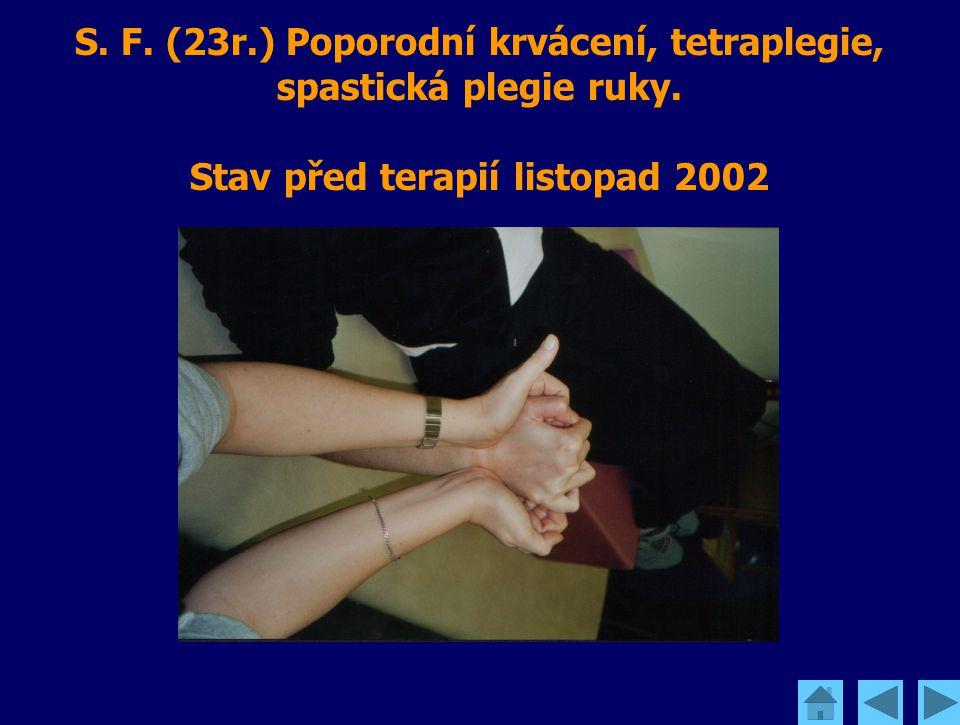 S. F. (23r.) Poporodní krvácení, tetraplegie, spastická plegie ruky. Stav před terapií listopad 2002