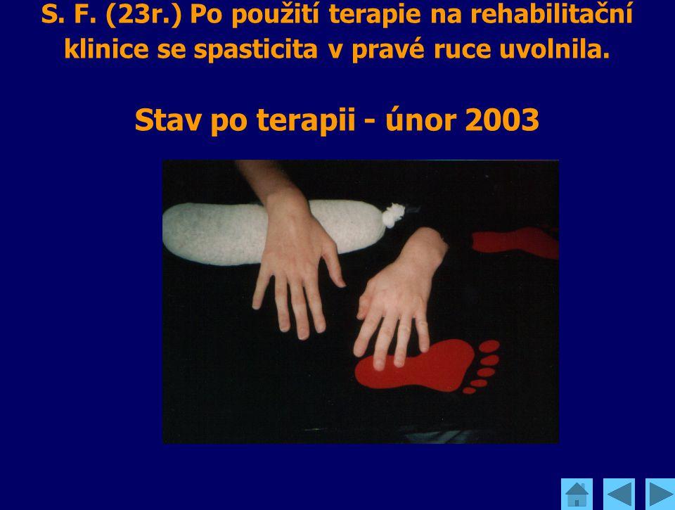 S. F. (23r.) Po použití terapie na rehabilitační klinice se spasticita v pravé ruce uvolnila. Stav po terapii - únor 2003