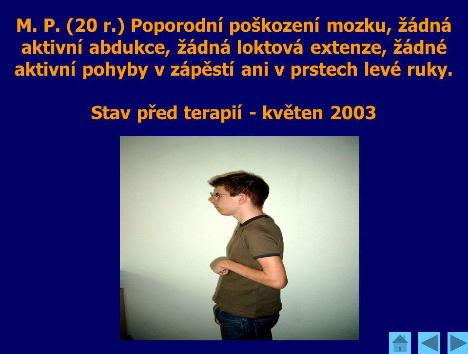 M. P. (20 r.) Poporodní poškození mozku, žádná aktivní abdukce, žádná loktová extenze, žádné aktivní pohyby v zápěstí ani v prstech levé ruky. Stav př