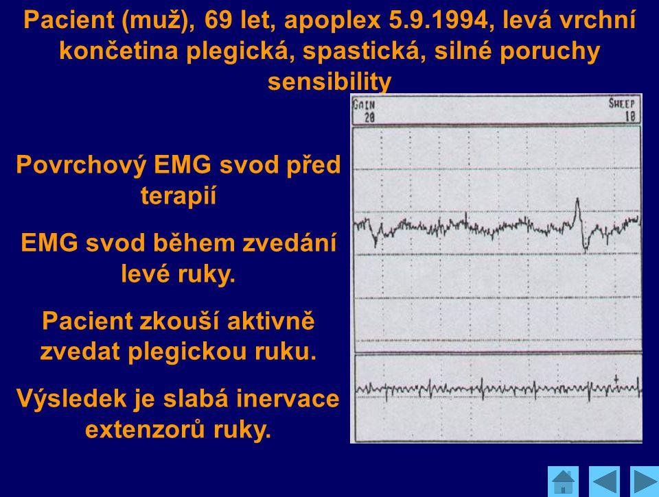 Pacient (muž), 69 let, apoplex 5.9.1994, levá vrchní končetina plegická, spastická, silné poruchy sensibility Povrchový EMG svod před terapií EMG svod