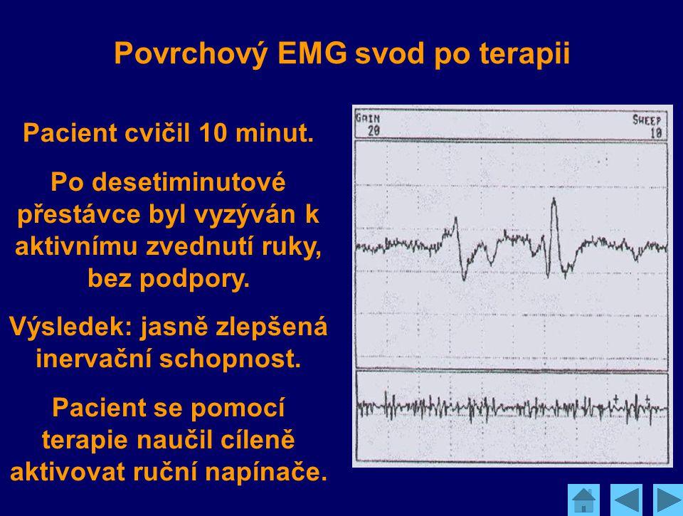 Povrchový EMG svod po terapii Pacient cvičil 10 minut. Po desetiminutové přestávce byl vyzýván k aktivnímu zvednutí ruky, bez podpory. Výsledek: jasně
