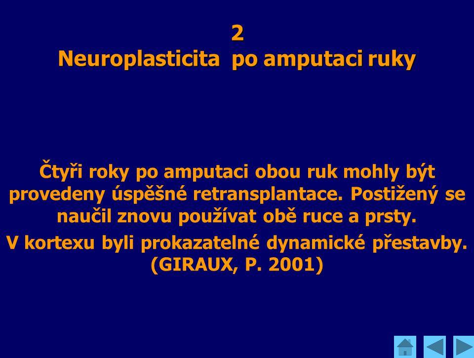 2 Neuroplasticita po amputaci ruky Čtyři roky po amputaci obou ruk mohly být provedeny úspěšné retransplantace. Postižený se naučil znovu používat obě