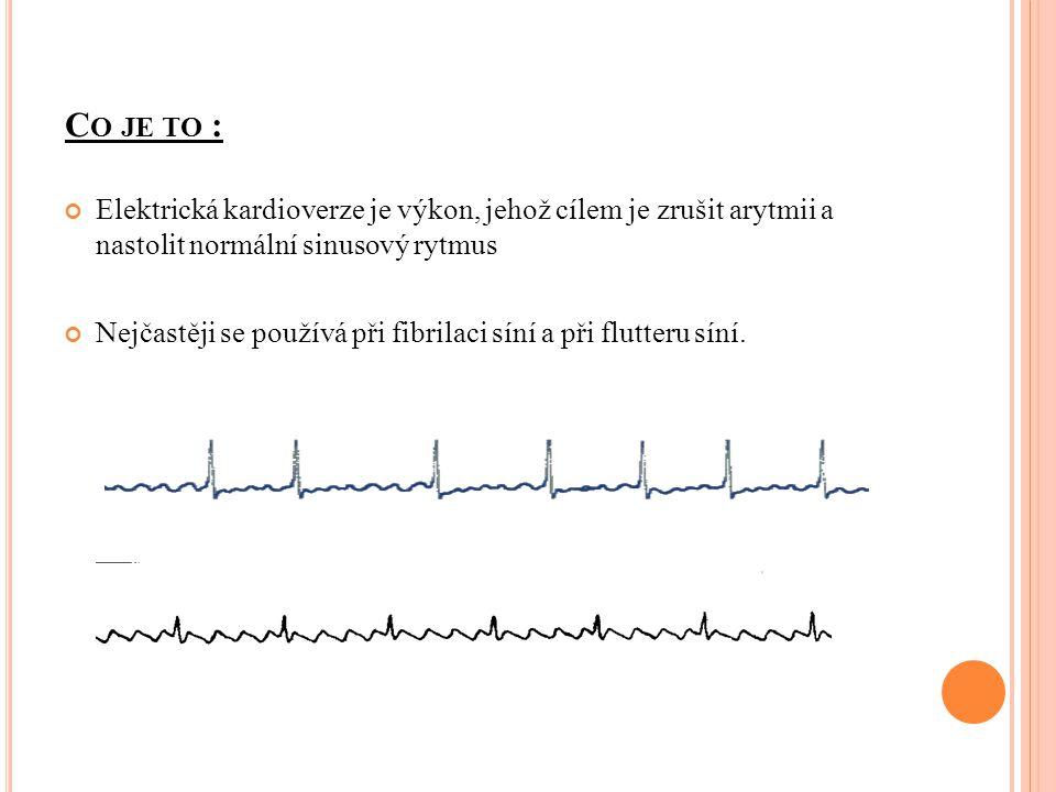 C O JE TO : Elektrická kardioverze je výkon, jehož cílem je zrušit arytmii a nastolit normální sinusový rytmus Nejčastěji se používá při fibrilaci sín