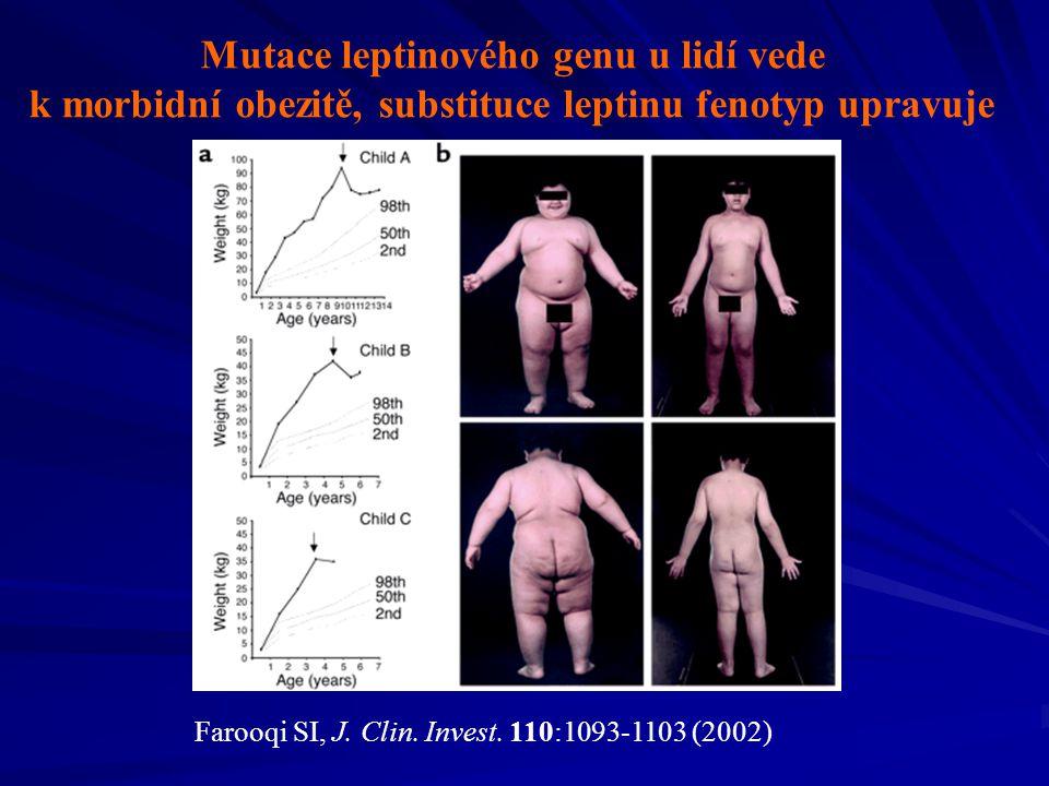 Ras protein Původ názvu: RAt Sarcoma Kódován stejnojmenným genem, protoonkogen (Mu ve 20-30% lidských malignit) Zřejmě přítomen u všech eukaryot Stimuluje proliferaci či diferenciaci B
