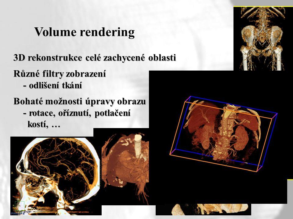 Volume rendering 3D rekonstrukce celé zachycené oblasti Různé filtry zobrazení - odlišení tkání - odlišení tkání Bohaté možnosti úpravy obrazu - rotac