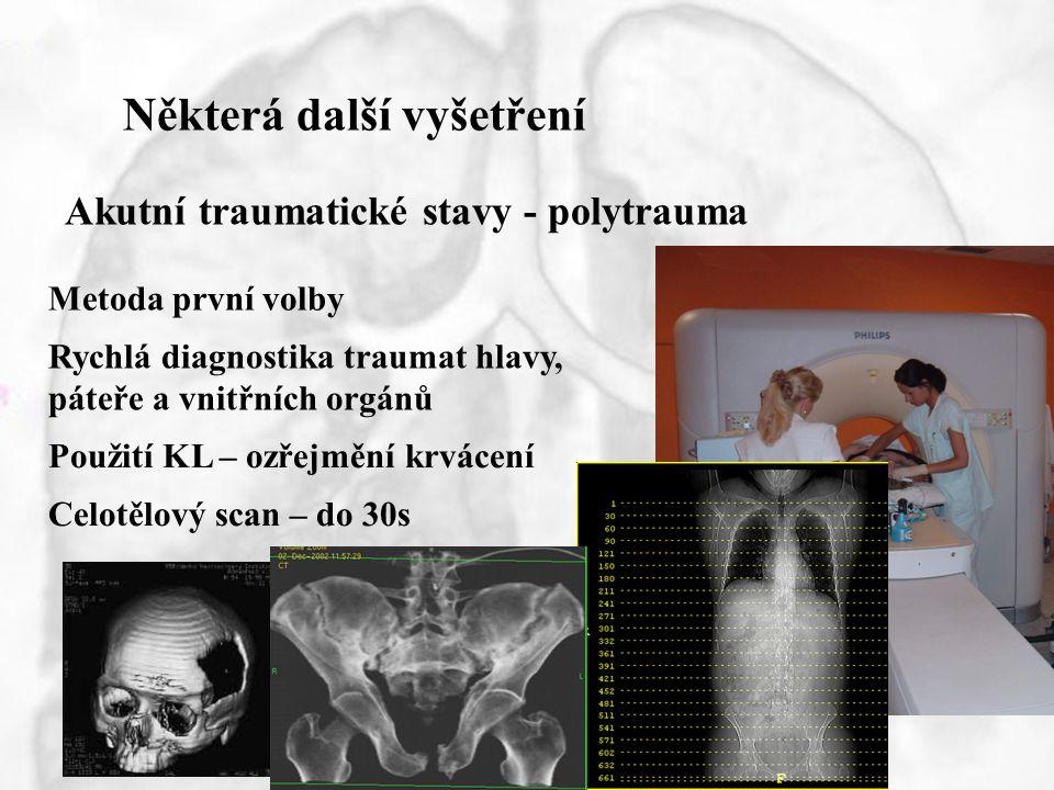 Některá další vyšetření Akutní traumatické stavy - polytrauma Metoda první volby Rychlá diagnostika traumat hlavy, páteře a vnitřních orgánů Použití K