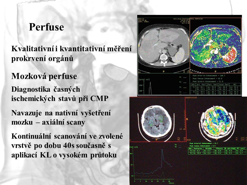 Perfuse Kvalitativní i kvantitativní měření prokrvení orgánů Mozková perfuse Navazuje na nativní vyšetření mozku – axiální scany Kontinuální scanování