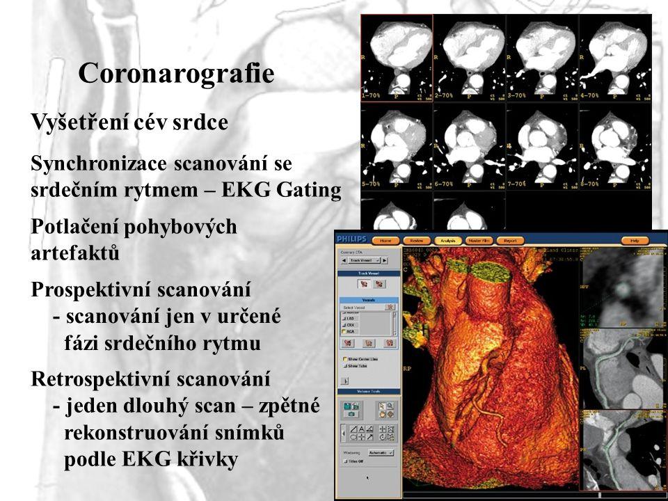 Coronarografie Vyšetření cév srdce Synchronizace scanování se srdečním rytmem – EKG Gating Potlačení pohybových artefaktů Prospektivní scanování - sca