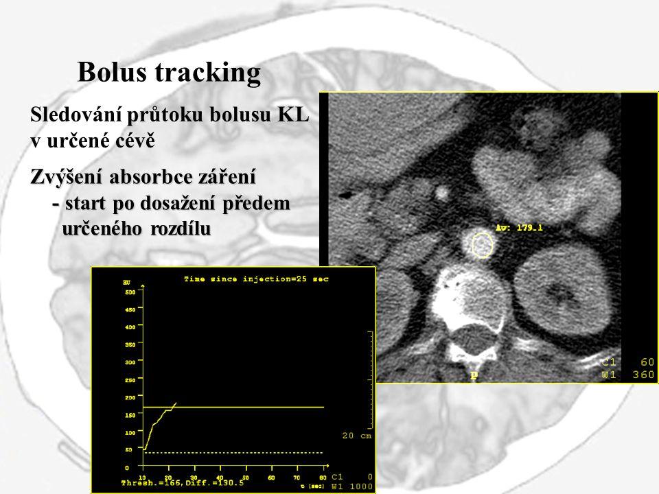 Bolus tracking Sledování průtoku bolusu KL v určené cévě Zvýšení absorbce záření - start po dosažení předem - start po dosažení předem určeného rozdíl