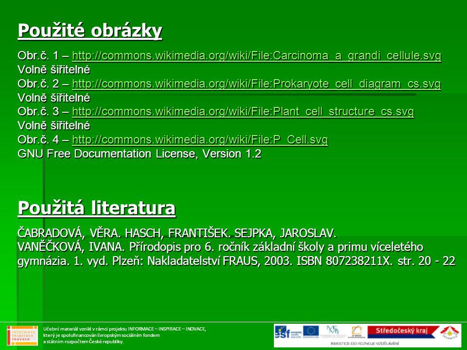 Použité obrázky Obr.č. 1 – http://commons.wikimedia.org/wiki/File:Carcinoma_a_grandi_cellule.svg http://commons.wikimedia.org/wiki/File:Carcinoma_a_gr