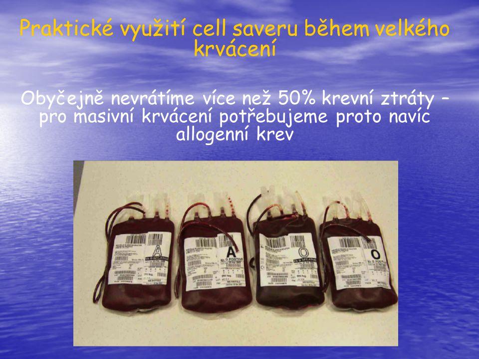Praktické využití cell saveru během velkého krvácení Obyčejně nevrátíme více než 50% krevní ztráty – pro masivní krvácení potřebujeme proto navíc allo