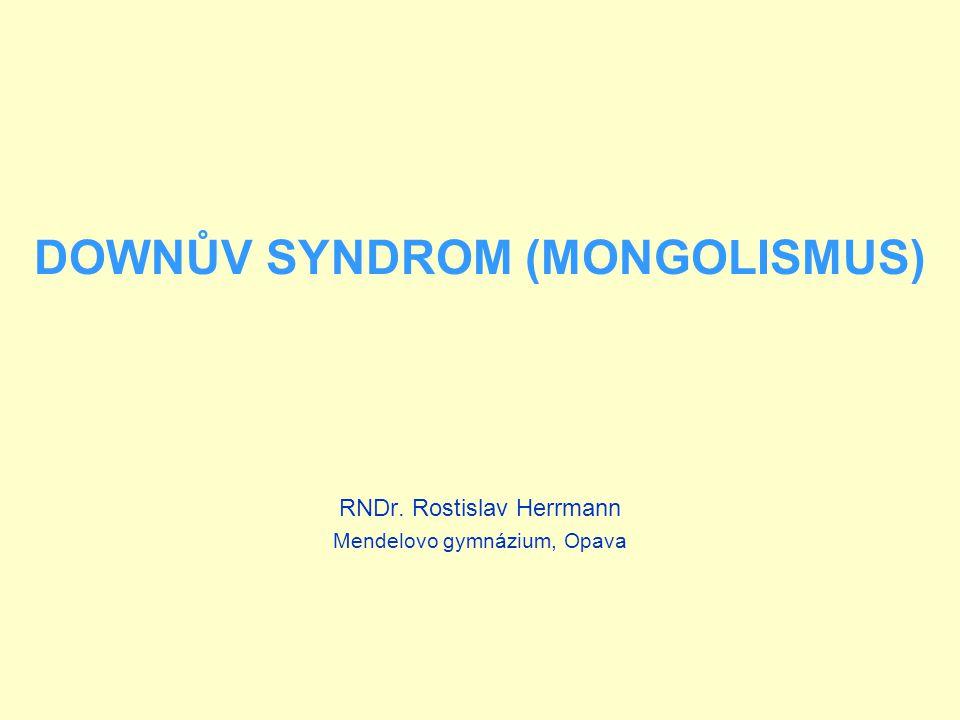 DOWNŮV SYNDROM (MONGOLISMUS) Patří k autozomálně dědičným chorobám V 94 - 95% vzniku je způsoben trizomií 21.