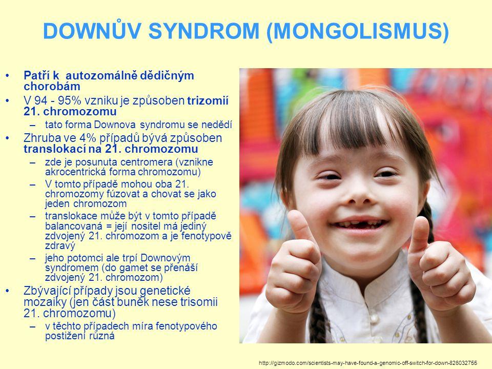 DOWNŮV SYNDROM (MONGOLISMUS) Patří k autozomálně dědičným chorobám V 94 - 95% vzniku je způsoben trizomií 21. chromozomu –tato forma Downova syndromu