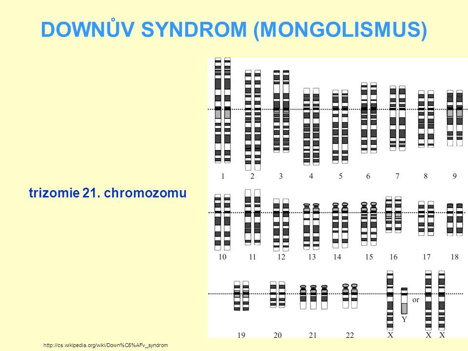 DOWNŮV SYNDROM (MONGOLISMUS) Jde o poměrně častou chorobu s frekvencí výskytu kolem 1x na 800 – 900 porodů V ČR frekvence výskytu poněkud nižší Na frekvenci výskytu má vliv pokročilý věk rodičů, především matky Při plánování rodičovství se doporučuje preventivní návštěva genetické poradny u každého páru, kde součet věku partnerů přesáhne 70) http://gizmodo.com/scientists-may-have-found-a-genomic-off-switch-for-down-826032755