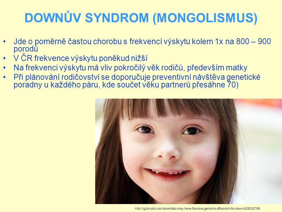 DOWNŮV SYNDROM (MONGOLISMUS) Jde o poměrně častou chorobu s frekvencí výskytu kolem 1x na 800 – 900 porodů V ČR frekvence výskytu poněkud nižší Na fre