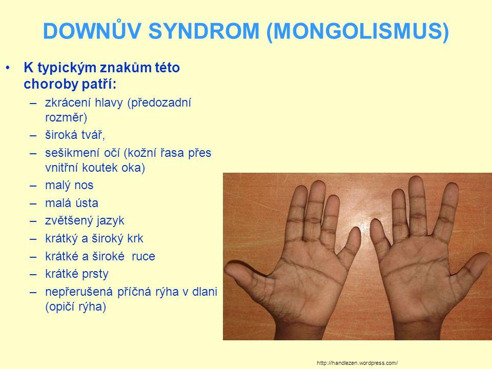 DOWNŮV SYNDROM (MONGOLISMUS) K typickým znakům této choroby patří: –zkrácení hlavy (předozadní rozměr) –široká tvář, –sešikmení očí (kožní řasa přes vnitřní koutek oka) –malý nos –malá ústa –zvětšený jazyk –krátký a široký krk –krátké a široké ruce –krátké prsty –nepřerušená příčná rýha v dlani (opičí rýha) http://handlezen.wordpress.com/