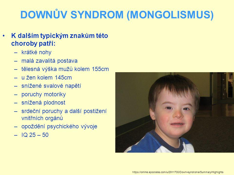DOWNŮV SYNDROM (MONGOLISMUS) K dalším typickým znakům této choroby patří: –krátké nohy –malá zavalitá postava –tělesná výška mužů kolem 155cm –u žen k