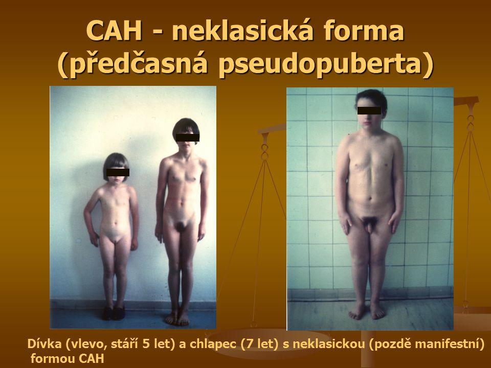 CAH - neklasická forma (předčasná pseudopuberta) Dívka (vlevo, stáří 5 let) a chlapec (7 let) s neklasickou (pozdě manifestní) formou CAH