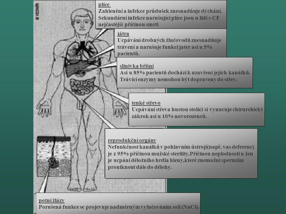 Základní fyziologický defekt při onemocnění CF Porucha absorbce iontů chloru, sodíku a vody buněčnou membránou Zasahuje různé orgány - plíce - pankrea