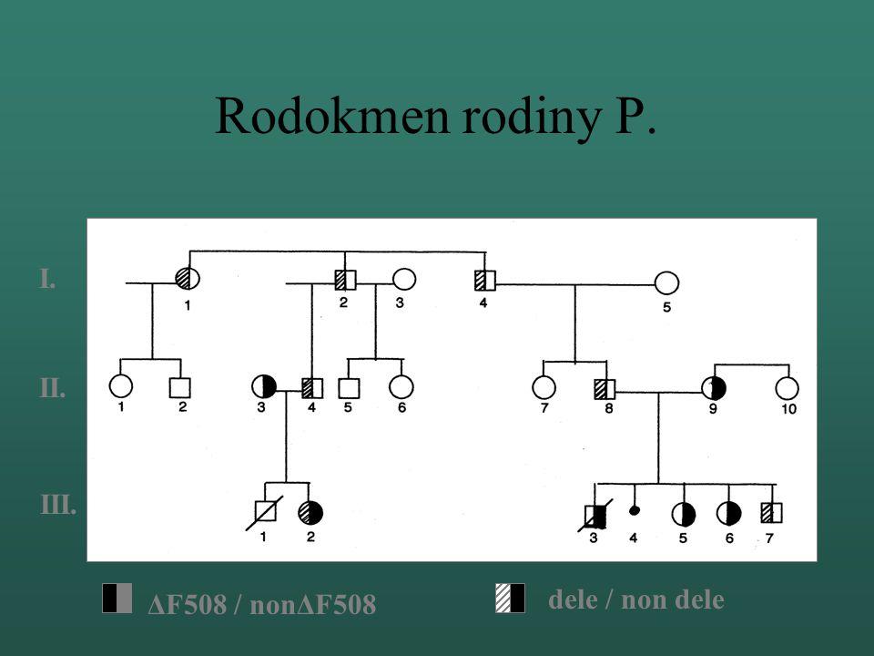 Ověření pozitivního výsledku 1 2 3 4 1.- 3. DNA pacientů 4. dele / non dele - kontrola ELFO: 5% PAGE, 200V, 25°C, 90 min Výsledek : 1. dele / non dele