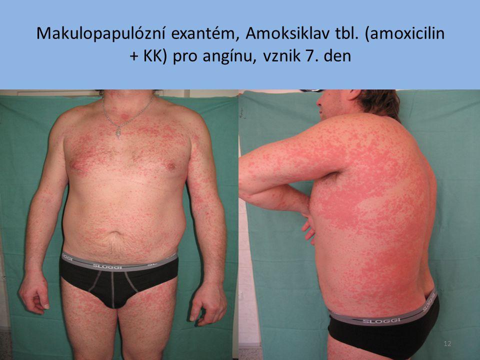 Makulopapulózní exantém, Amoksiklav tbl. (amoxicilin + KK) pro angínu, vznik 7. den 12