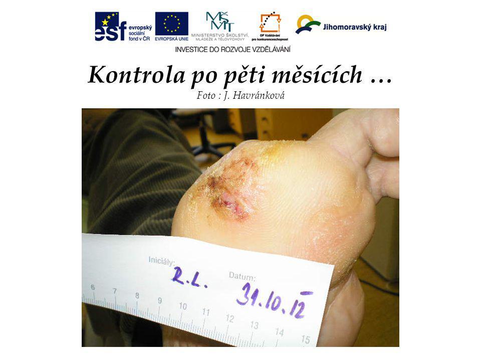 Kontrola po pěti měsících … Foto : J. Havránková