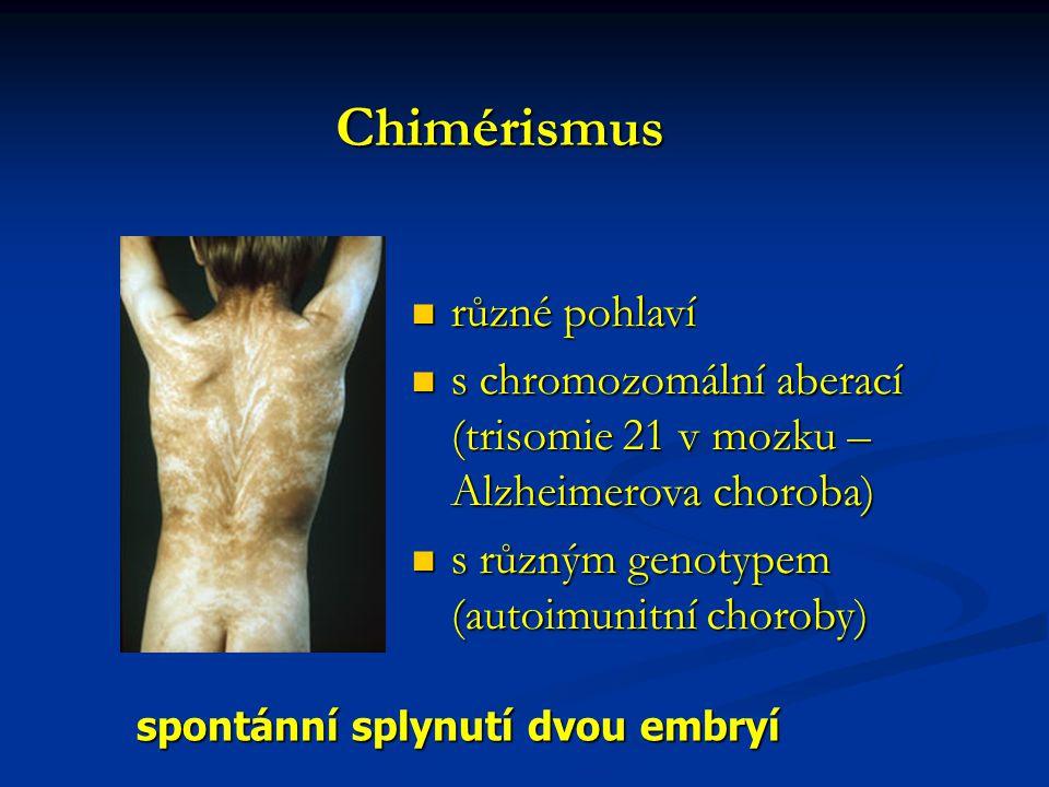 Genetická detekce defektů Trisomie 21 – Downův syndrom – 20.