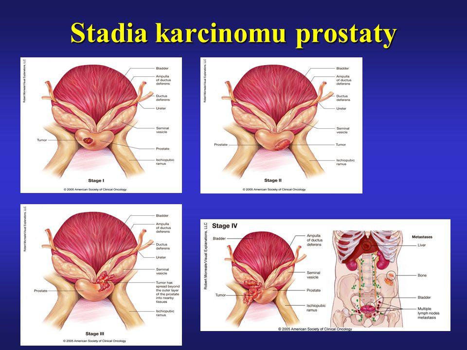 Stadia karcinomu prostaty