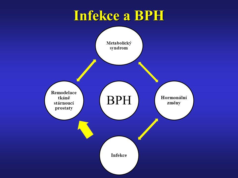 Infekce a BPH