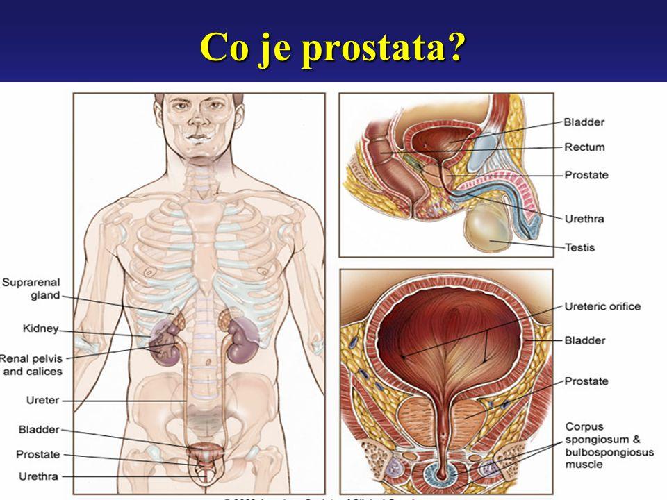 Vývoj BPH BPH se vyvíjí v různých stupních: indukce mikroskopické hyperplázieindukce mikroskopické hyperplázie vývoj mikroskopických uzlíkůvývoj mikroskopických uzlíků manifestace klinické BPHmanifestace klinické BPH - zvětšení prostaty - zvětšení prostaty - obstrukce vývodu močového měchýře - obstrukce vývodu močového měchýře - symptomy dolních cest močových - symptomy dolních cest močových (lower urinary tract symptoms - LUTS) (lower urinary tract symptoms - LUTS)