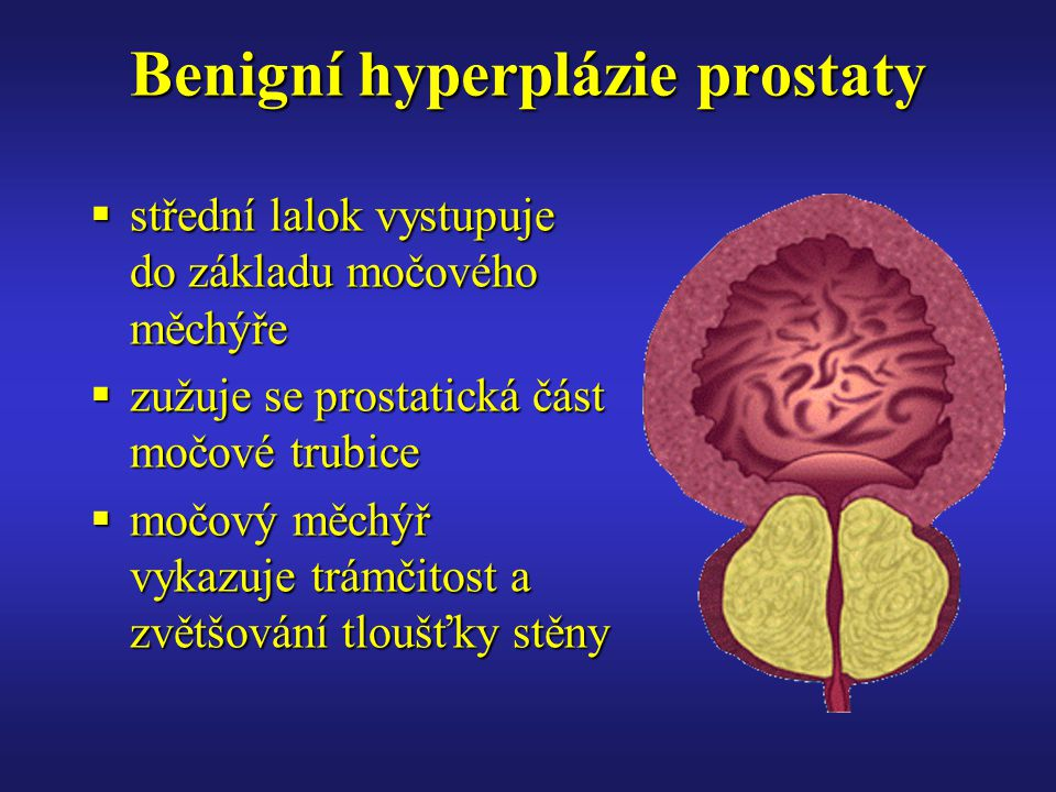 Benigní hyperplázie prostaty  střední lalok vystupuje do základu močového měchýře  zužuje se prostatická část močové trubice  močový měchýř vykazuje trámčitost a zvětšování tloušťky stěny