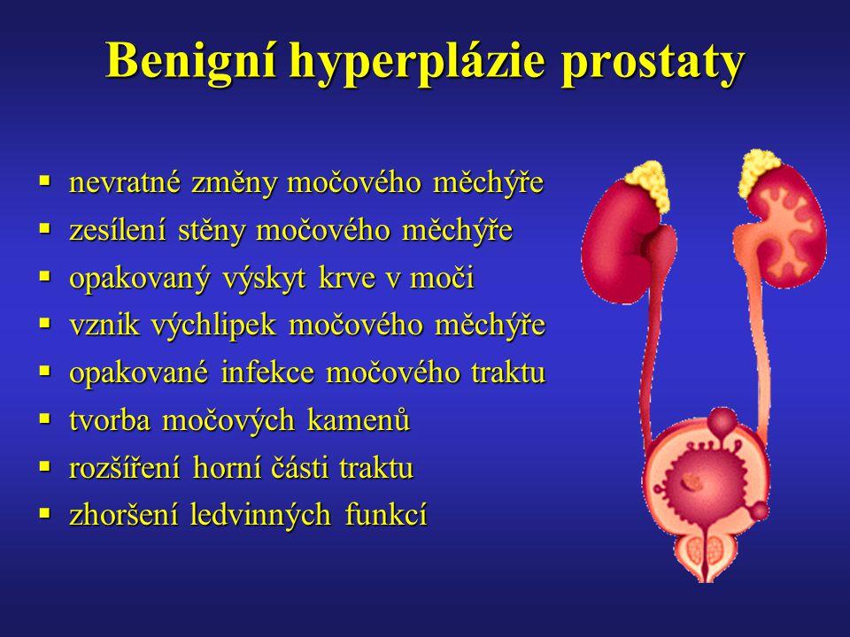 Benigní hyperplázie prostaty  nevratné změny močového měchýře  zesílení stěny močového měchýře  opakovaný výskyt krve v moči  vznik výchlipek močového měchýře  opakované infekce močového traktu  tvorba močových kamenů  rozšíření horní části traktu  zhoršení ledvinných funkcí