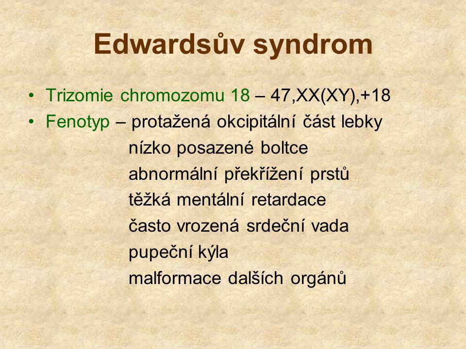 Edwardsův syndrom Trizomie chromozomu 18 – 47,XX(XY),+18 Fenotyp – protažená okcipitální část lebky nízko posazené boltce abnormální překřížení prstů