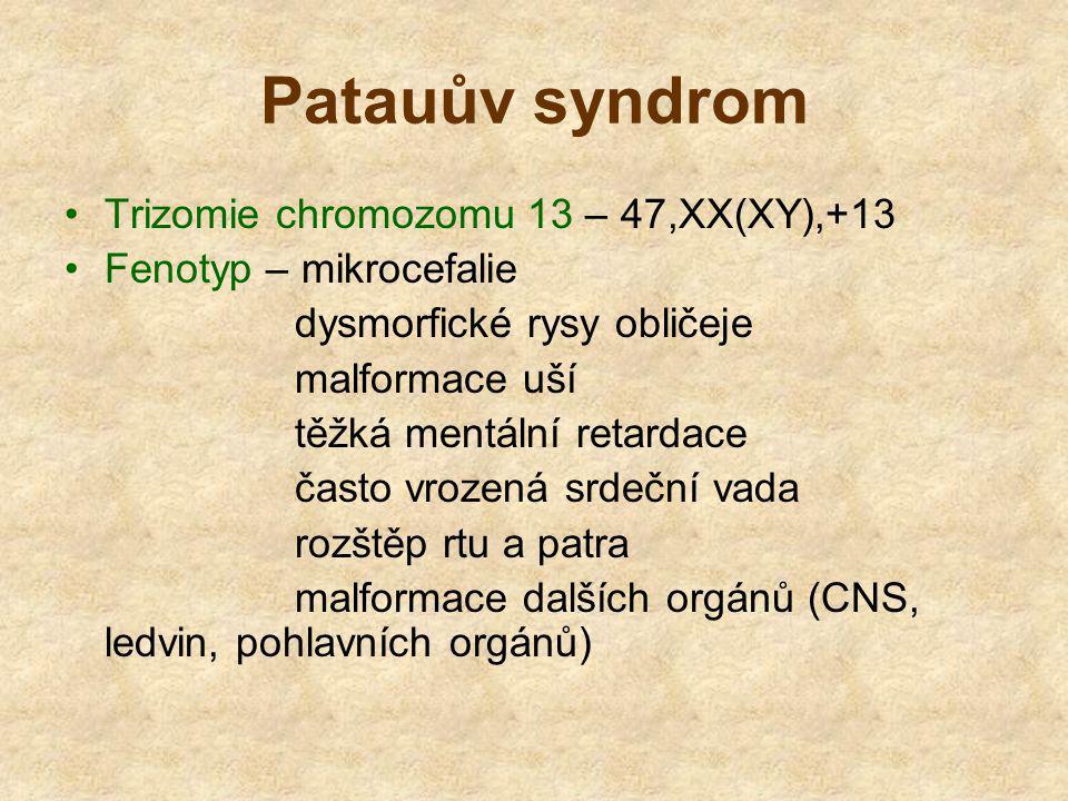 Patauův syndrom Trizomie chromozomu 13 – 47,XX(XY),+13 Fenotyp – mikrocefalie dysmorfické rysy obličeje malformace uší těžká mentální retardace často vrozená srdeční vada rozštěp rtu a patra malformace dalších orgánů (CNS, ledvin, pohlavních orgánů)