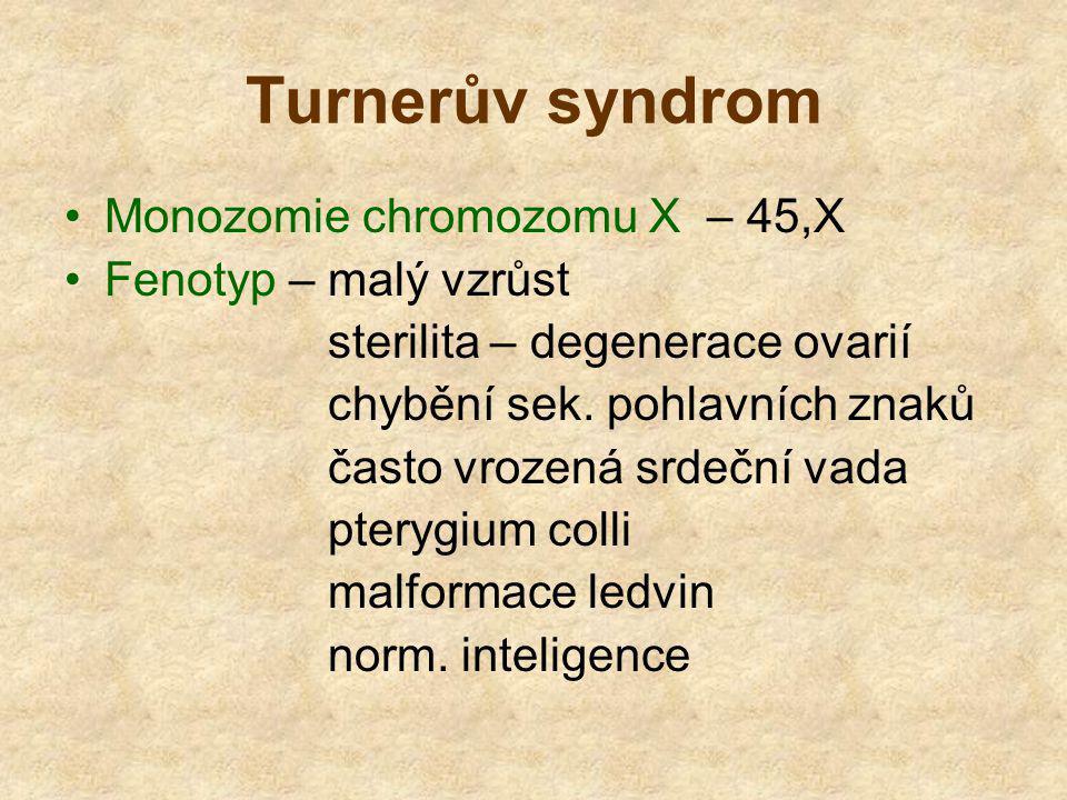 Turnerův syndrom Monozomie chromozomu X – 45,X Fenotyp – malý vzrůst sterilita – degenerace ovarií chybění sek. pohlavních znaků často vrozená srdeční