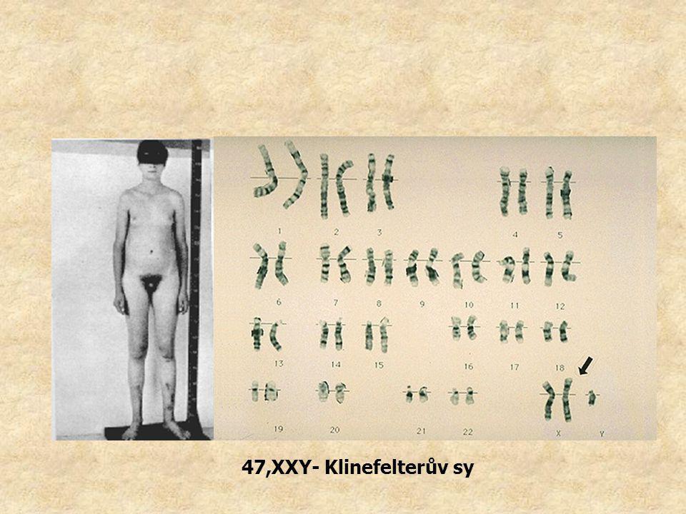 47,XXY- Klinefelterův sy