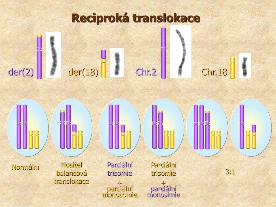 Reciproká translokace der(2) Chr.18 der(18) Chr.2 Normální Nositel balancová translokace Parciální trisomie + parciální monosomie Parciální trisomie +