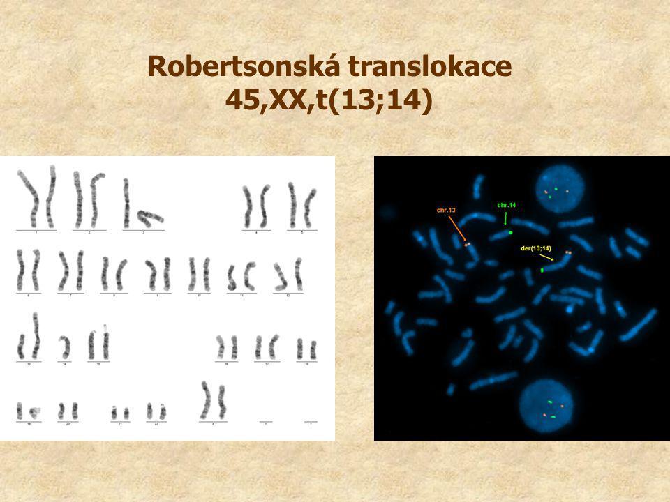 Robertsonská translokace 45,XX,t(13;14)