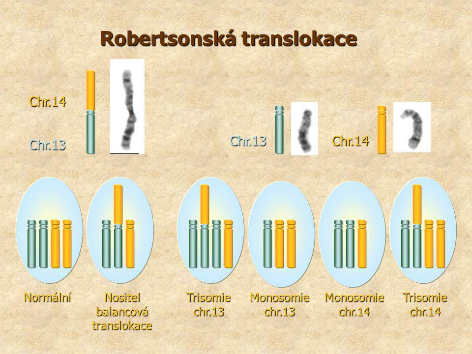 Robertsonská translokace Chr.13 Chr.14 Chr.13 Chr.14 Normální Nositel balancová translokace Trisomie chr.13 Trisomie chr.14 Monosomie chr.13 Monosomie chr.14