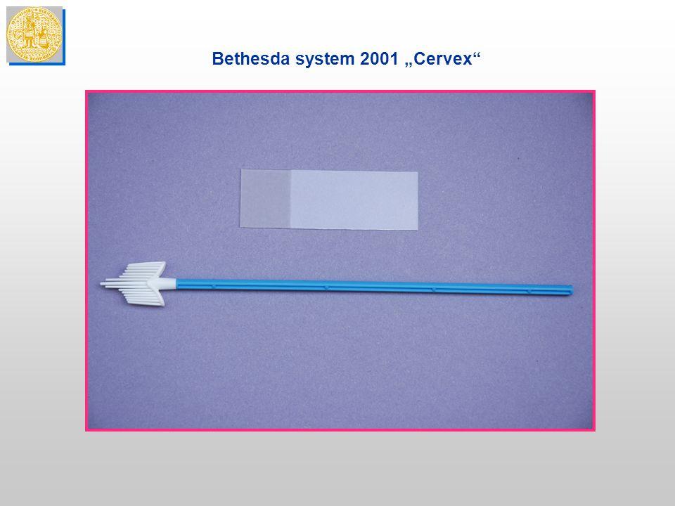 """Bethesda system 2001 """"Cervex"""""""