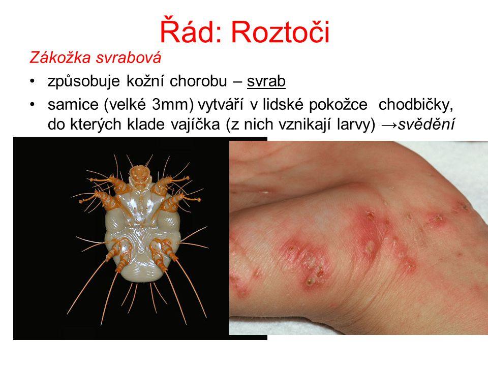 Řád: Roztoči Zákožka svrabová způsobuje kožní chorobu – svrab samice (velké 3mm) vytváří v lidské pokožce chodbičky, do kterých klade vajíčka (z nich vznikají larvy) →svědění
